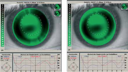 KAKC N r0= 6.40 mm D = 9.20 mm KAKCF r0 = 6.40 mm D= 9.20 mm