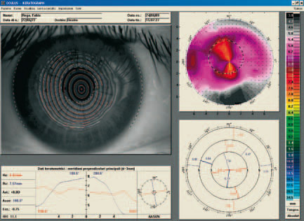 Oculus - Topografia corneale post cheratoplastica